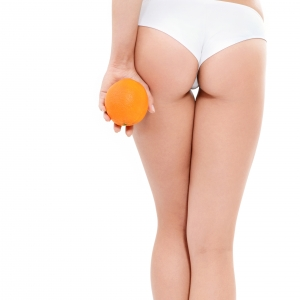 Young woman in underwear with an orange showing absence of cellu